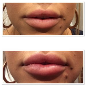 lip-injections-6
