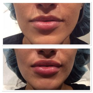 lip-injections-7