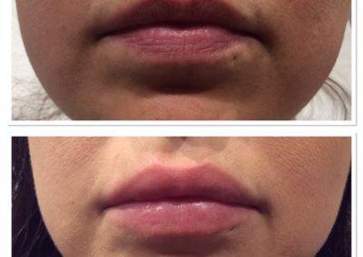 lip-injections-8