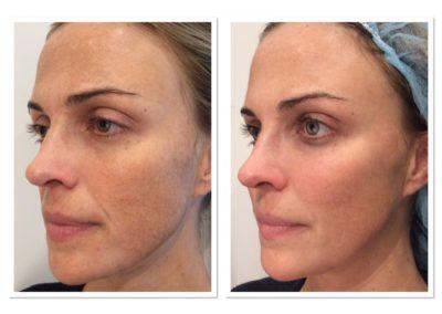 liquid-facelift-nonsurgical-2
