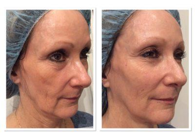 liquid-facelift-nonsurgical