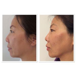 liquid-facelift-nonsurgical-5