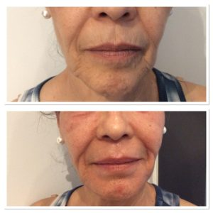 total-skin-tightening-restoration-2