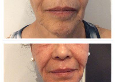 total-skin-tightening-restoration-2