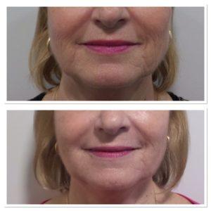 total-skin-tightening-restoration