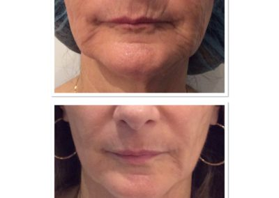 total-skin-tightening-restoration-4