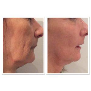 total-skin-tightening-restoration-5