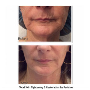 Copy of File_000 TS
