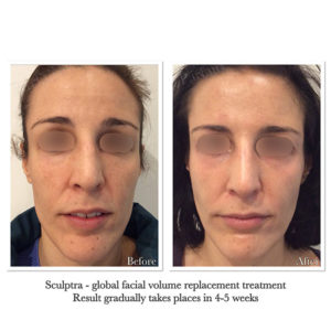 Facial Aging Treatments Before & After by Parfaire