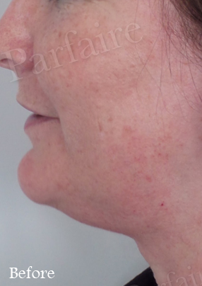 Skin Tightening Treatment 7