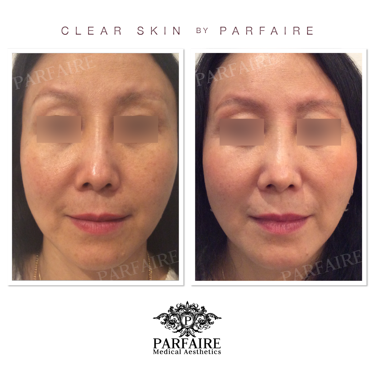 Clear Skin treatment by Parfaire