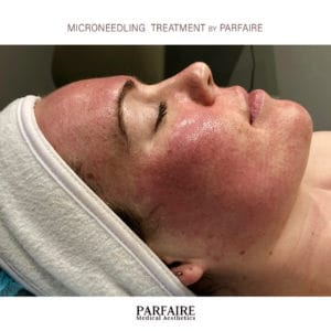 microneedling-treatment-by-parfaire