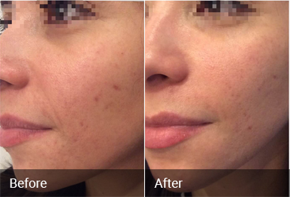 Acne Scar Treatment Before & After
