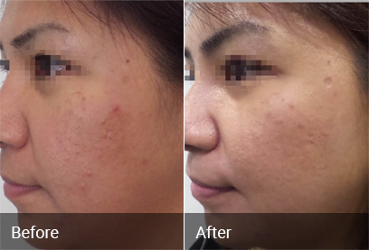 Acne Scar Treatment Before & After 2
