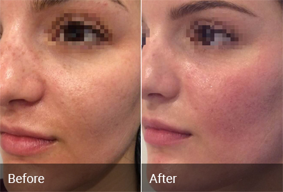 Acne Scar Treatment Before & After 3