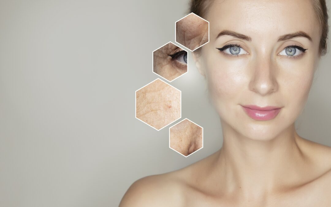 Why Microneedling Skin Treatments with Hyaluronic Acid and PRP are so Effective