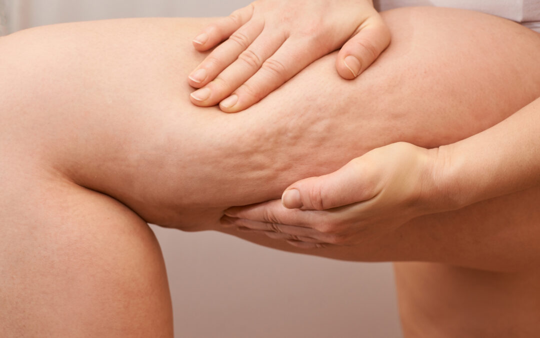 A message from Dr. Winnie Moses: Finally, a solution for cellulite!