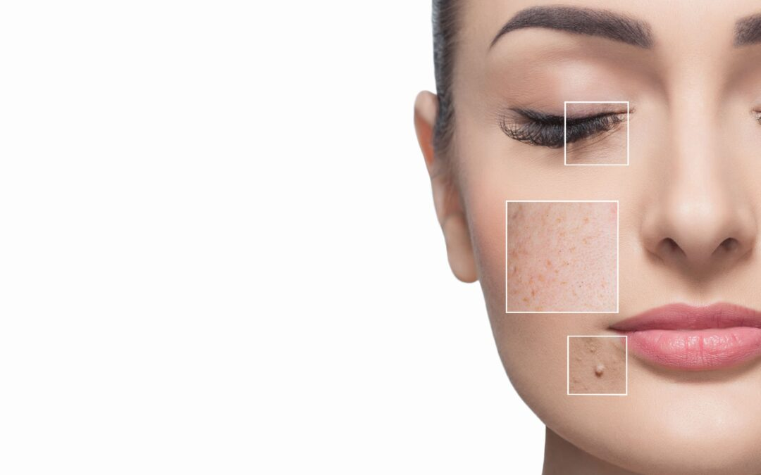 Message from Dr. Winnie Moses: The Goldilocks Solution to Dark Spots on Your Skin