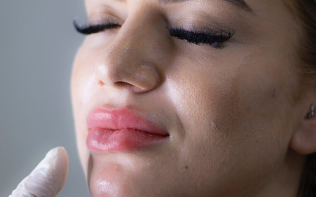 Dermal Fillers Can Be Reversed With Hylenex